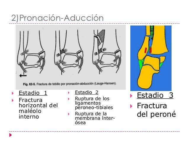 3)Pronación-Rotación externa(supraligamentarias)   Estadio   1: Fractura del maléolo interno   Estadio   2: Ruptura del ...