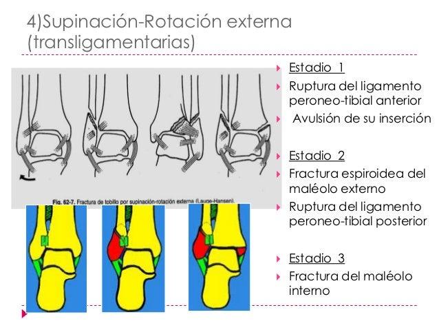 Clasificación deDanis-Weber   Fundamento    anatómico del trazo    fracturario:       Suprasindesmótica-- C       Trans...