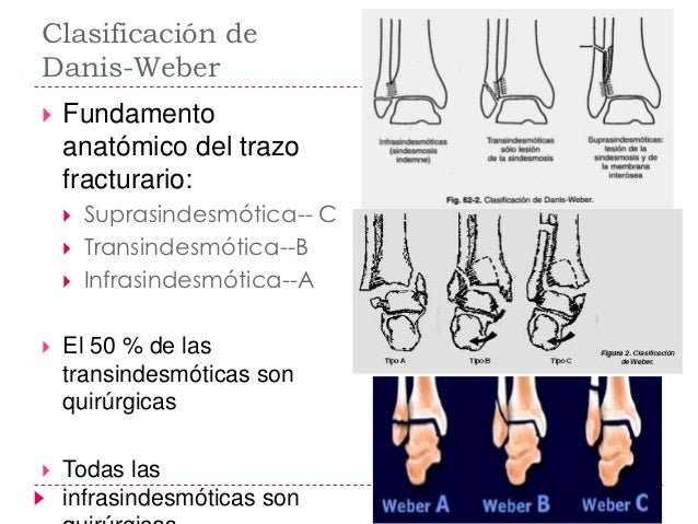    Infrasindesmotica o tipo A        Fractura transversa del peroné por debajo de la sindesmosis        El maléolo medi...