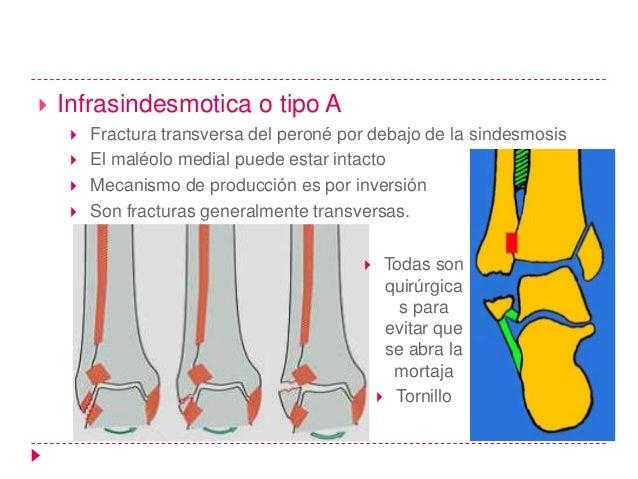    Transindesmotica o tipo B       El peroné tiene fractura oblicua ascendente       Se puede acompañar de fractura tra...