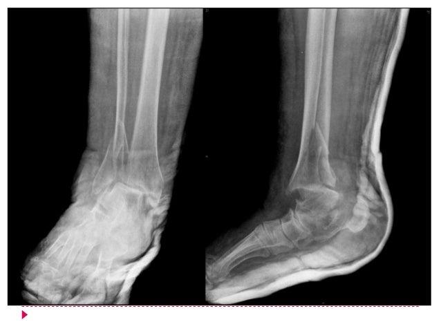    Diagnóstico        Historia clínica        Radiografías AP, lateral y oblicuas        Rx comparativas *