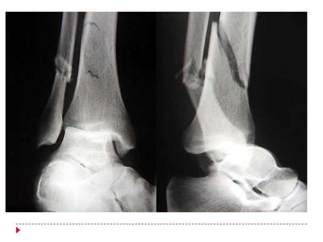 Tipos               de          fracturas Aisladas de       Maléolo                                   Pilón tibialmaléolo ...
