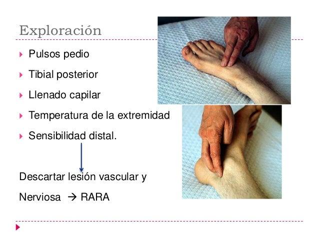    AISLADAS DE MALEOLO EXTERNO       Las más comunes       No hay lesión de maleolo medial o ligamento Deltoideo       ...