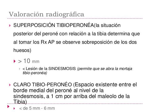    FRACTURA DEL MALEOLO POSTERIOR       Por rotación externa o abducción       Mecanismo            Avulsión de ligame...