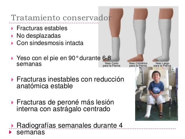    Para evitar una atrofia muscular y una    trombosis, debe empezar a trabajarse    la musculatura mientras se lleva el ...