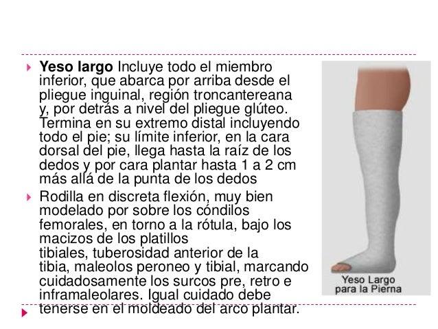 Tratamiento específico    Las lesiones tipo C por lo general se indica    tratamiento con yeso bota corta por 8 semanas e...