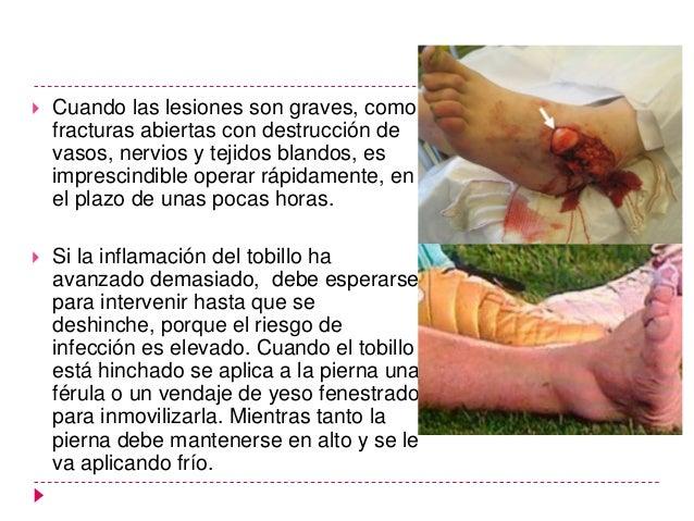 Complicaciones   Infección (postquirúrgica)   Artrosis   Varo o exceso de valgo en peroné por mala    reducción   Fija...
