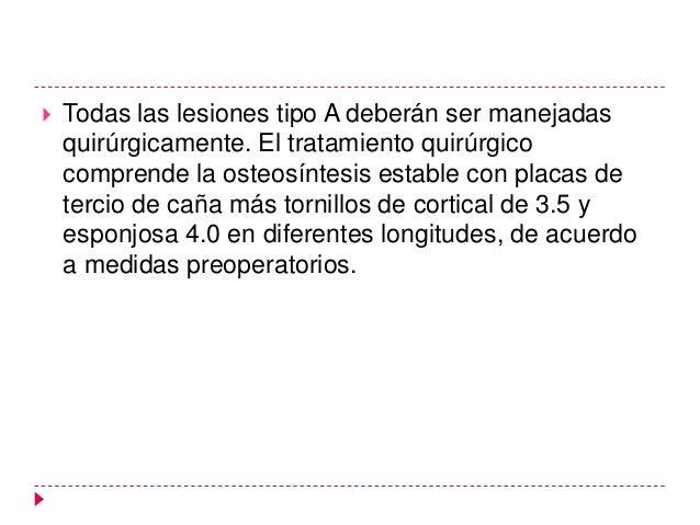 Otras clasificaciones  Tipo        Dupuytren            Danis             Lauge-Hansen        Weber        Duparc I (5%)  ...