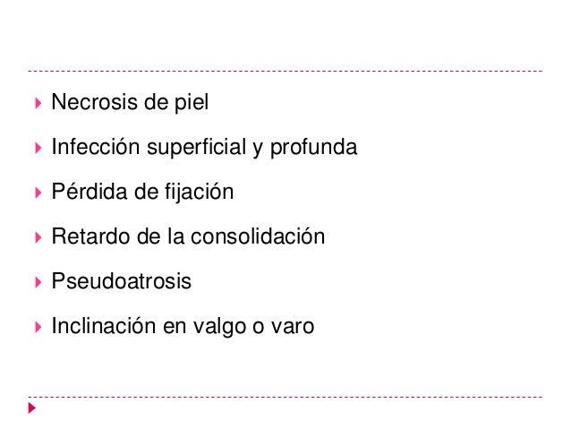    En una lesión de la placa epifisaria tipo existe una separación    completa de la epífisis con respecto a la metáfisis...