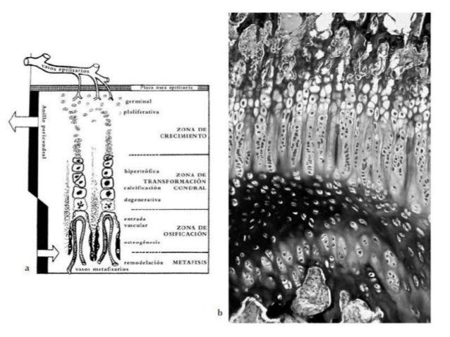    En las lesiones epifisarias tipo 4 la fractura, que también es intra-    articular, se extiende desde la superficie ar...