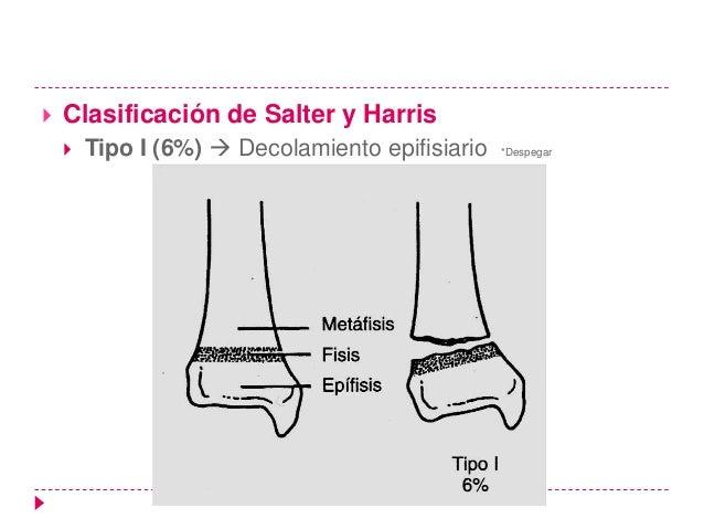    La lesión fisaria tipo 5 es un tipo de lesión    relativamente infrecuente, consecuencia de una    fuerza de aplastami...