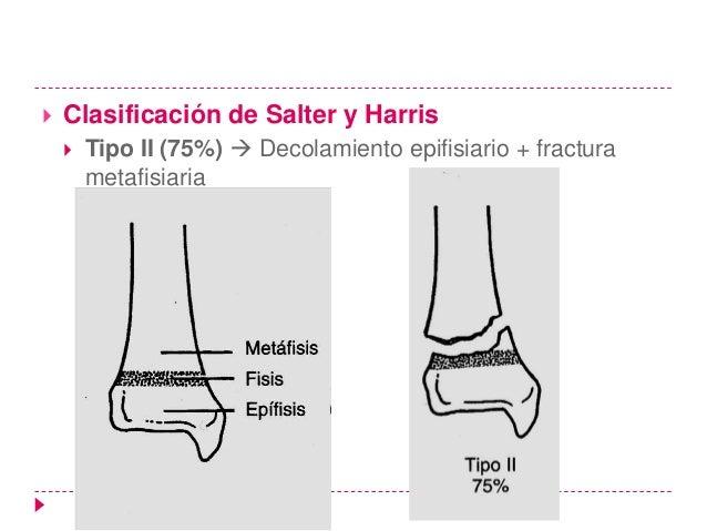 Método• La gran mayoría de las lesiones de la placa epifisaria de los tipos 1 y 2 son reducidas  adecuadamente de forma ce...