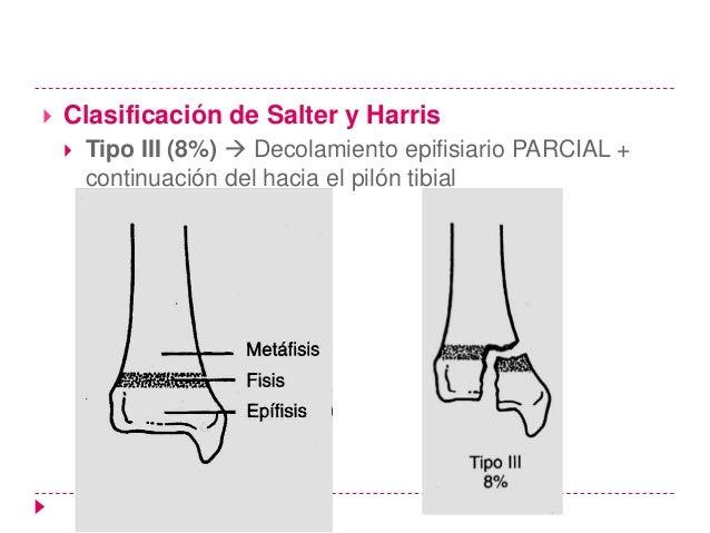 Falla en el diagnóstico precoz   El fallo diagnóstico de las lesiones de tipo 1 es difícil de    evitar en los niños que ...