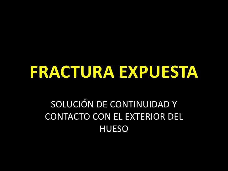 FRACTURA EXPUESTA<br />SOLUCIÓN DE CONTINUIDAD Y CONTACTO CON EL EXTERIOR DEL HUESO<br />