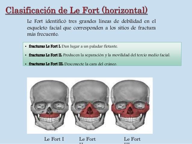 Fractura maxilar