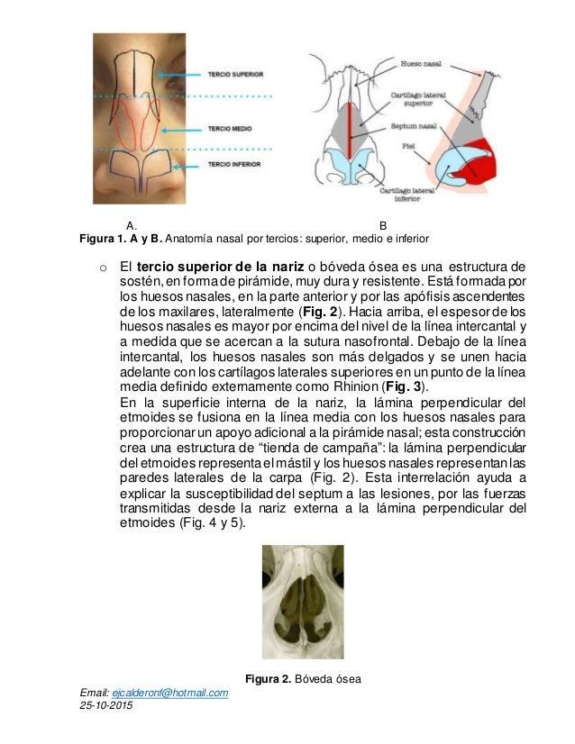 FRACTURA NASAL: DIAGNOSTICO Y TRATAMIENTO. I PARTE.e