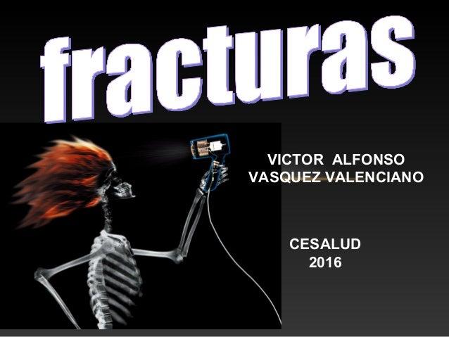 VICTOR ALFONSO VASQUEZ VALENCIANO CESALUD 2016