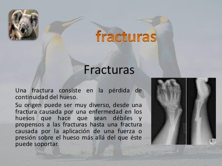 FracturasUna fractura consiste en la pérdida decontinuidad del hueso.Su origen puede ser muy diverso, desde unafractura ca...