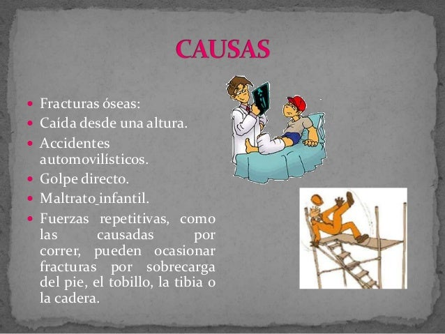 Fracturas Slide 3
