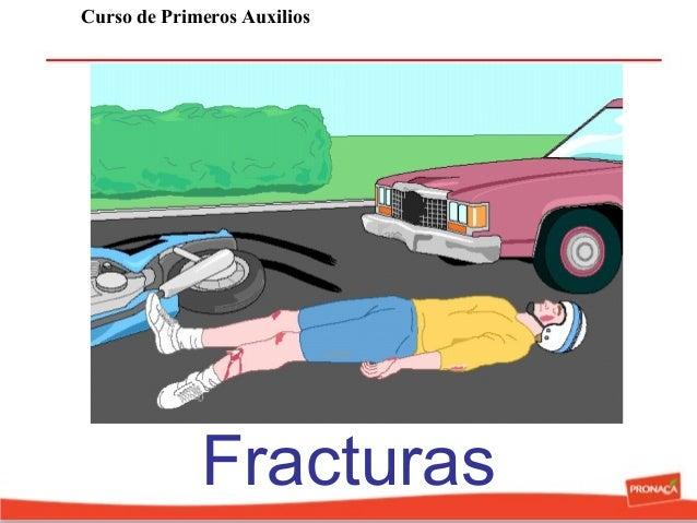 Curso de Primeros Auxilios  Fracturas