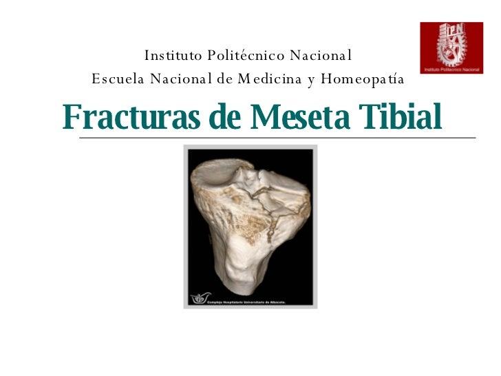 Fracturas de Meseta Tibial Instituto Politécnico Nacional Escuela Nacional de Medicina y Homeopatía