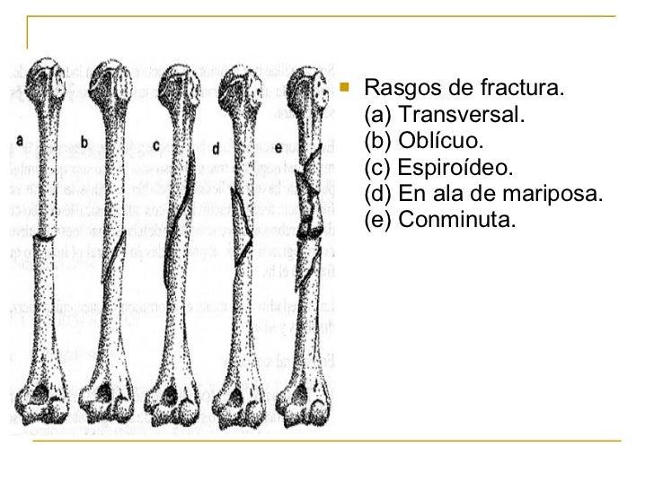 Fracturas Y Lesiones Articulares