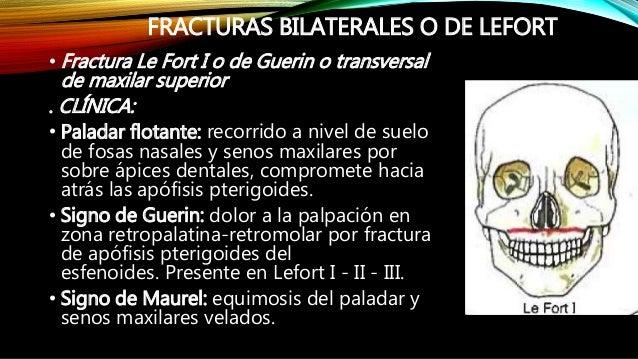 FRACTURAS LEFORT CLASIFICACION PDF