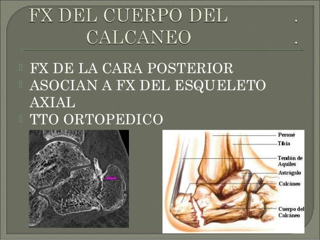  2 EN FRECUENCIA EN EL TARSO  POCA VASCULARIZACION  NO PRESENTA INSERCIONES MUSCULOTENDINOSAS  RESPONSABLE DE MAS DEL ...