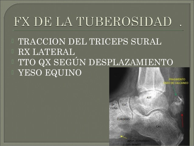  TIPO I: INMOVILIZA CON YESO POR 8 12 SEMANAS  TIPO II: REDUCCION CERRADA , RAFI CON TORNILLOS CANULADOS DE 4,5 MM.  TI...