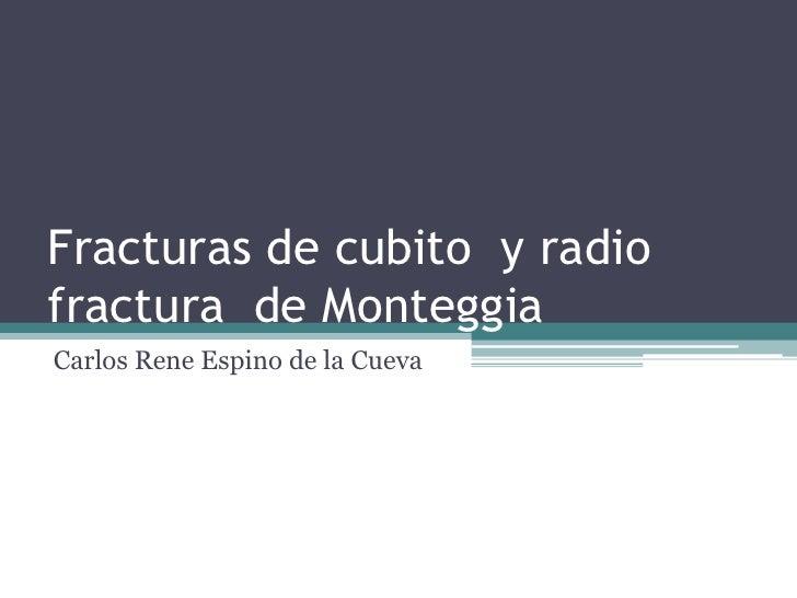 Fracturas de cubito  y radiofractura  de Monteggia<br />Carlos Rene Espino de la Cueva<br />
