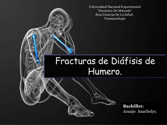 """Fracturas de Diáfisis de Humero. Universidad Nacional Experimental """"Francisco De Miranda"""" Área Ciencias De La Salud . Trau..."""