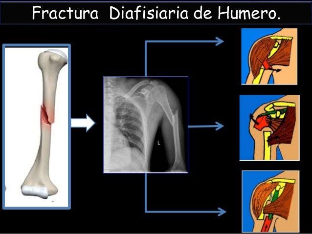 Fracturas de diafisis humeral. Slide 3