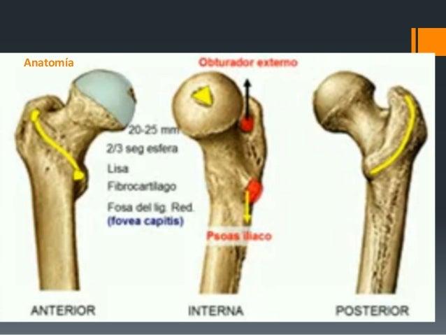Fracturas de femur proximal