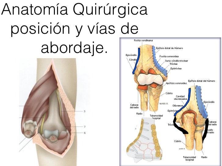 Increíble Anatomía Húmero Distal Friso - Anatomía de Las Imágenesdel ...