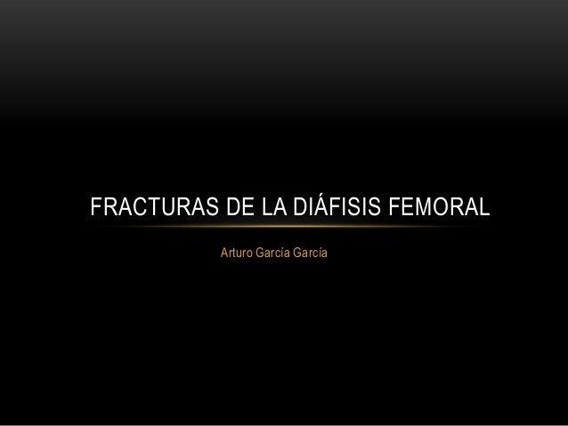 Arturo García García FRACTURAS DE LA DIÁFISIS FEMORAL