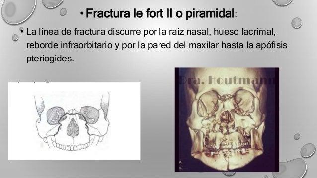 FRACTURAS DE LEFORT PDF DOWNLOAD