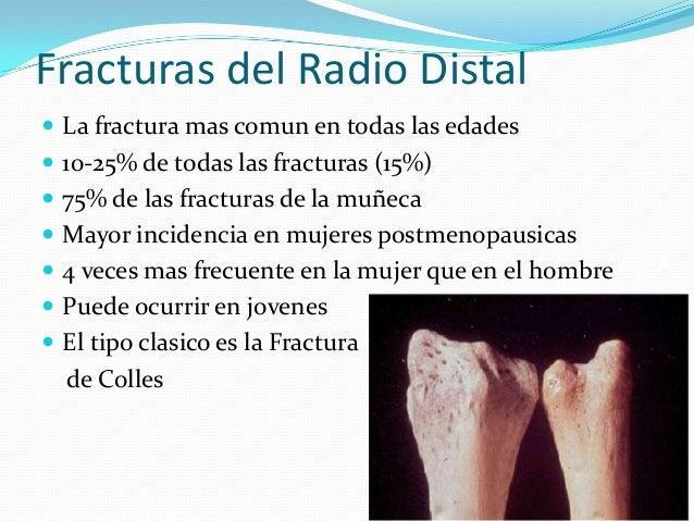 Fracturas del radio distal Slide 3