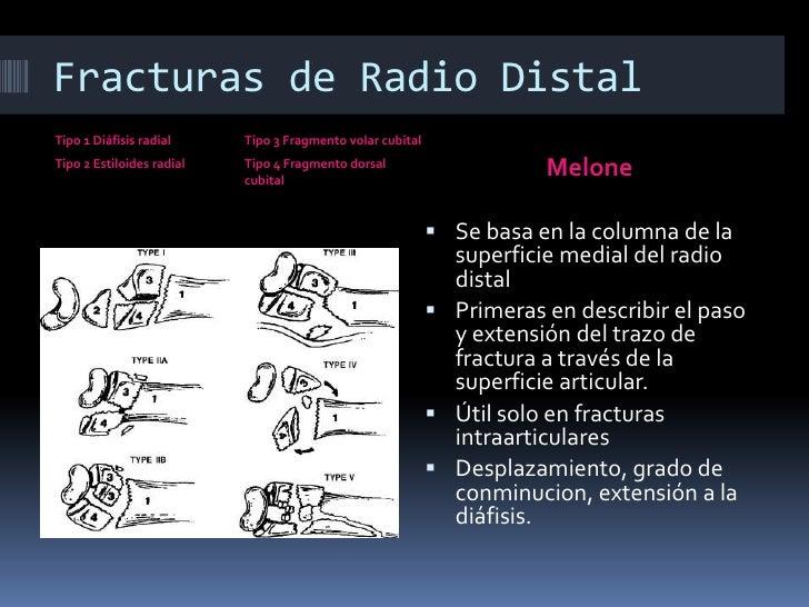 Fracturas de radio distal - Generalidades