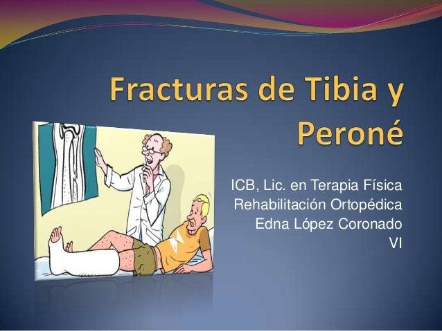 ICB, Lic. en Terapia Física Rehabilitación Ortopédica Edna López Coronado VI