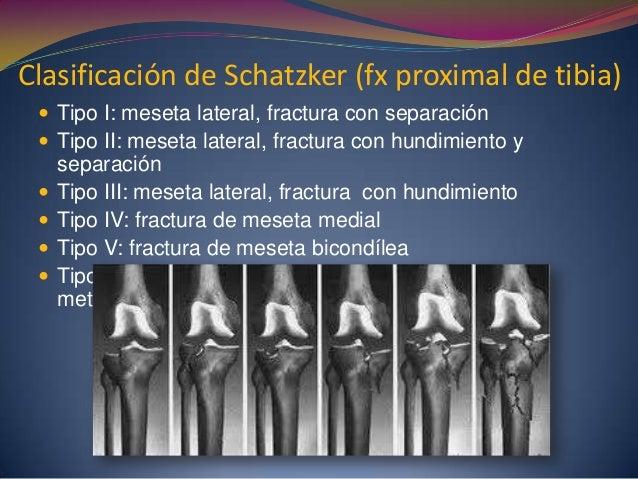 Clasificación de Schatzker (fx proximal de tibia)  Tipo I: meseta lateral, fractura con separación  Tipo II: meseta late...
