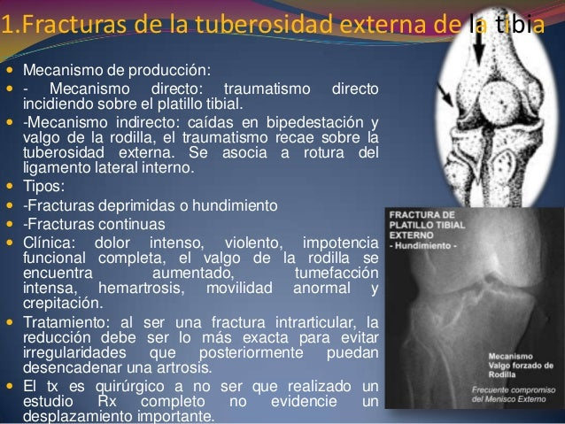 1.Fracturas de la tuberosidad externa de la tibia  Mecanismo de producción:  - Mecanismo directo: traumatismo directo in...