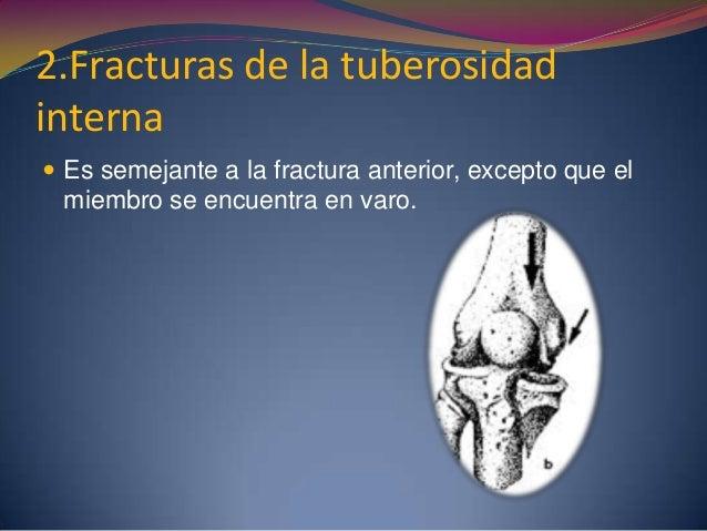 2.Fracturas de la tuberosidad interna  Es semejante a la fractura anterior, excepto que el miembro se encuentra en varo.