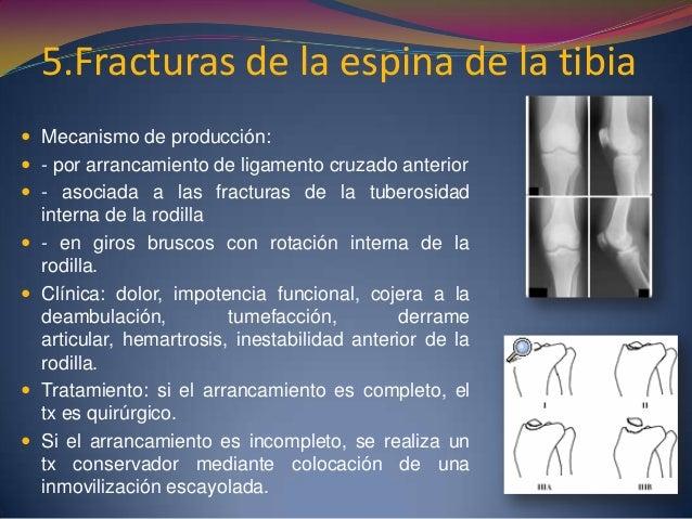 Lesiones asociadas  Roturas meniscales (50%)  Roturas ligamentosas asociadas de los ligamentos cruzados o colaterales (3...