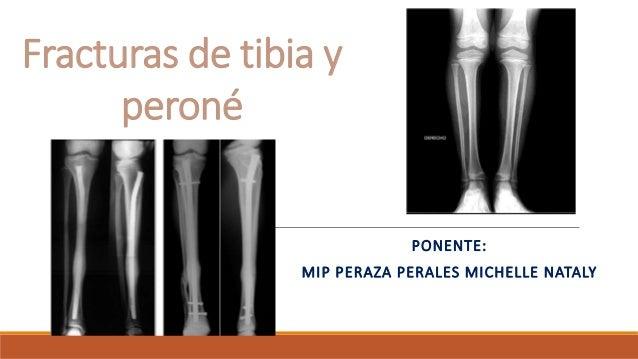Fracturas de tibia y peroné PONENTE: MIP PERAZA PERALES MICHELLE NATALY