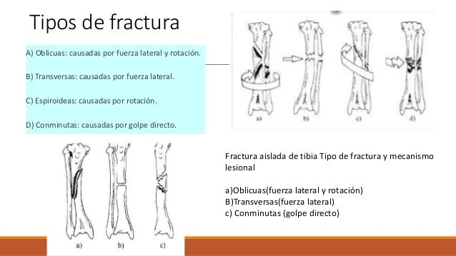 Evaluación Cinética de la lesión Características de la herida y de las partes blandas Método de estabilización de la fr...