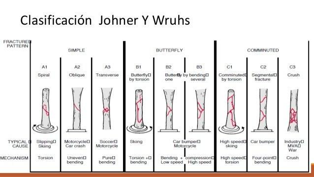 Fractura proximal de la tibia Son intraarticulares, ocurren por fuerzas axiales en valgo o varo. La complicación más gra...