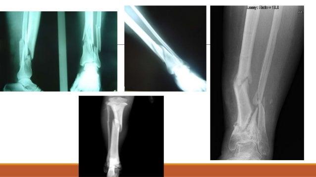 En el estudio radiográfico las fracturas no desplazadas pueden no ser visibles se recomienda radiografías de sobrecarga ...