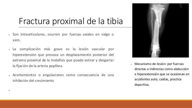 Fractura de la espina tibial Frecuente en niños El mecanismo de lesión se produce por caída en bicicleta, politrauma y act...