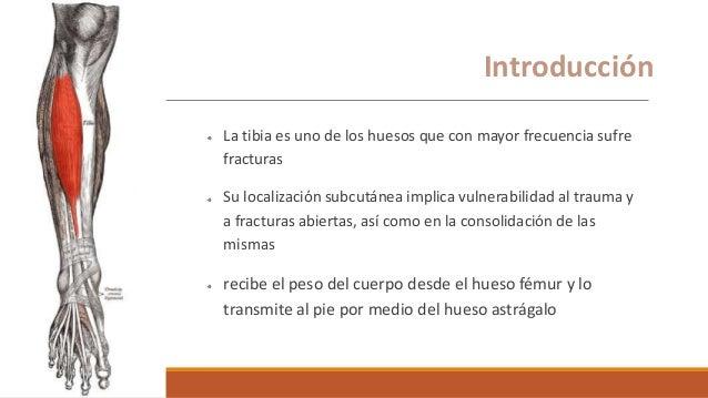 Generalidades La tibia es uno de los huesos que con mayor frecuencia sufre fracturas Su localización subcutánea implica vu...
