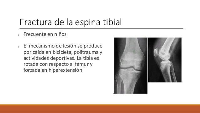 Tratamiento El tratamiento no Qx: Fx. no desplazada= yeso inguinopedico. Fx. Cerrada = reducción cerrada + yeso inguinope...
